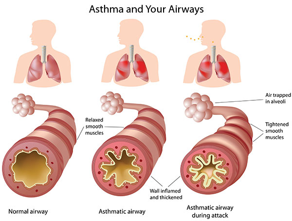 Asthma and Your Airways